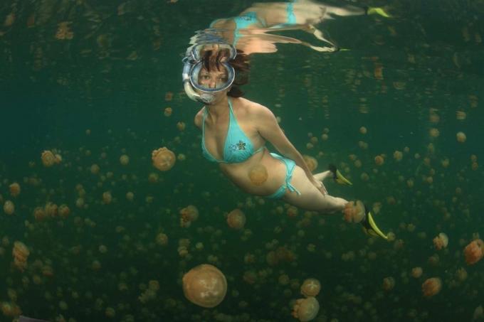 Tratamientos para la picadura de medusa